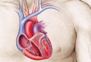 Inset anatomical illustration of heart used in Boston Scientific educational materials; graphic design by Carolyn Porter of Porterfolio, Inc. Illustration by Christy Krames.