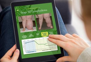 Two hands on iPad with image of Lymphedema iPad app made for Tactile Medical; graphic design by Carolyn Porter of Porterfolio, Inc.