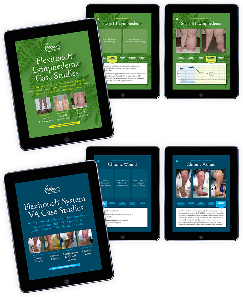 Sample layouts showing two iPad apps created for Tactile Medical; graphic design by Carolyn Porter of Porterfolio, Inc.